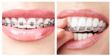 """Här är de moderna tandställningarna som ersätter """"rälsen"""""""
