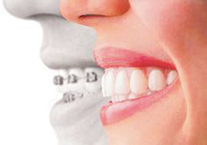tandstallning